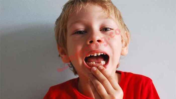 5 Cara Mengobati Sakit Gigi Pada Anak Yang Paling Ampuh Lampung Co