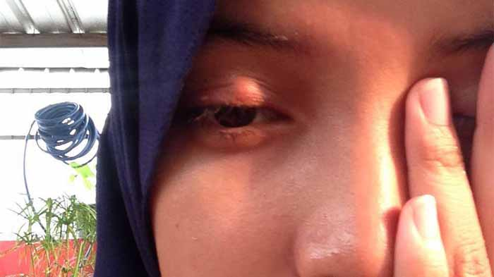 Cara Mengobati Mata Bintitan