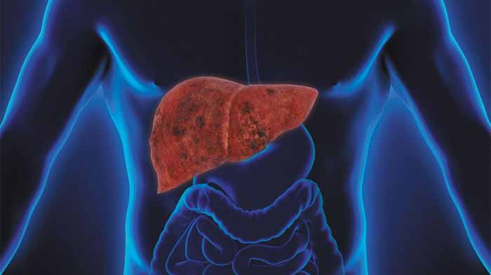 Cara Mengobati Penyakit Liver
