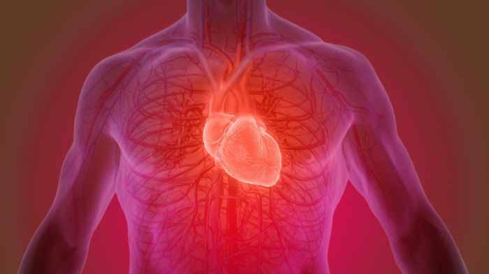 Cara Mengobati Jantung Bengkak