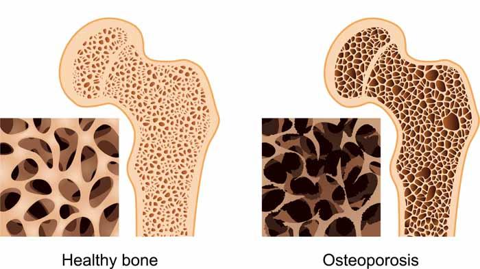 Cara Mengobati Osteoporosis