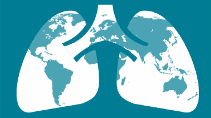 Cara Mengobati TBC