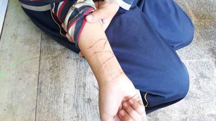 BNNP Lampung: Pelajar Sayat Tangan bukan Pengaruh Minuman, Tapi Aksi Tantangan