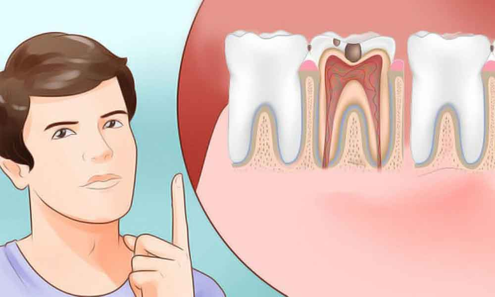Cara Mengobati Gigi Berlubang