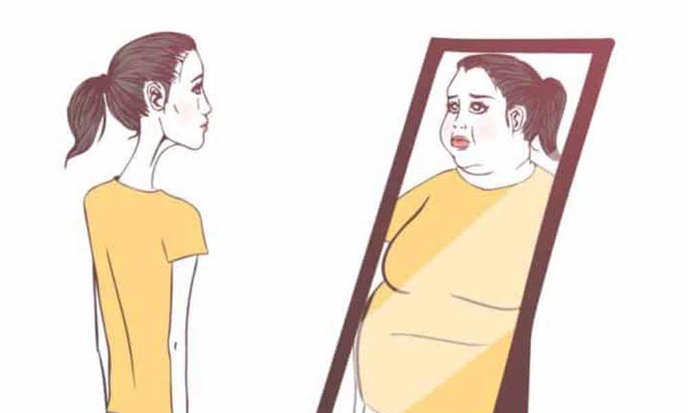 Anoreksia Nervosa